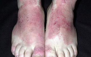Диета при дерматите на лице