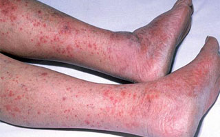 Венозный дерматит на ногах лечение