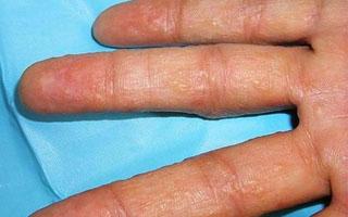 Трещины на руках при сухой экземе лечение