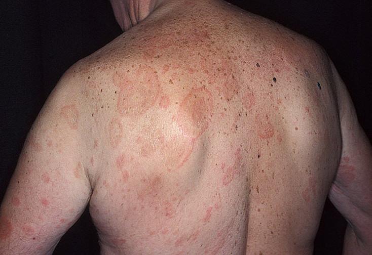Острая крапивница на спине у мужчины