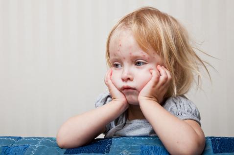 Ребенок с высыпанием крапивницы на лице
