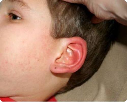 Аллергия на ухе у ребенка