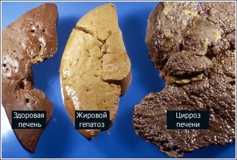 Как выглядит печень здорового и больного человека