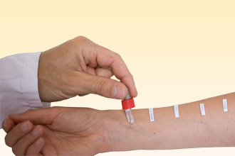 Аллергия серебро: причины, симптомы и лечение